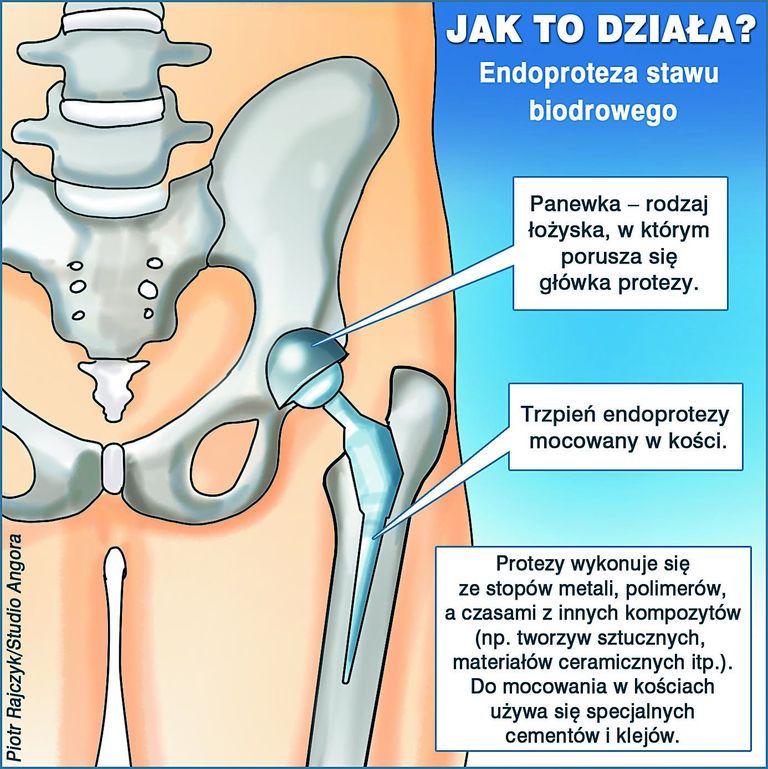 Kobaltowe protezy bioder  przyczyną dramatycznych komplikacji – Tygodnik Angora